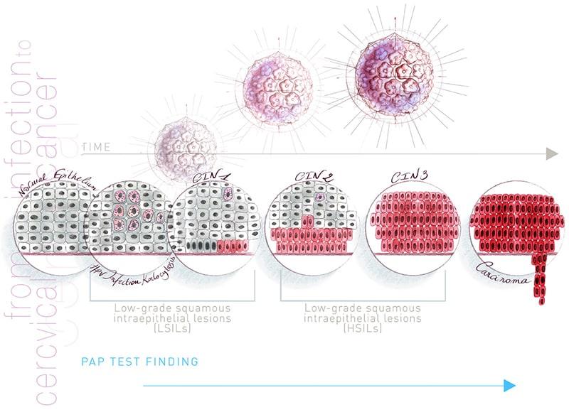 Hpv vírus ember kezeli, Ezek is érdekelhetik